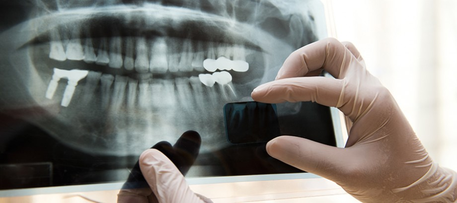 <Strong>Implantes</Strong><br>Cuidado e higiene de los implantes dentales