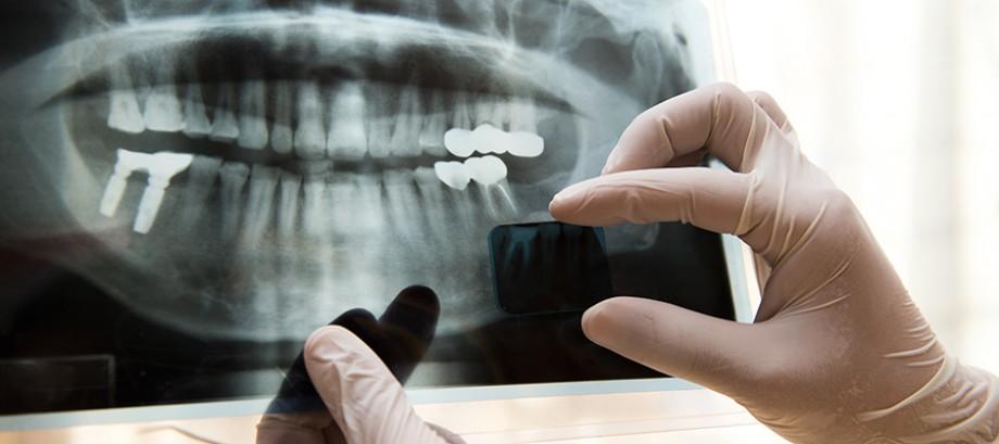 <strong>IMPLANTS</strong> <br>Entretien et hygiène <br>des implants dentaires