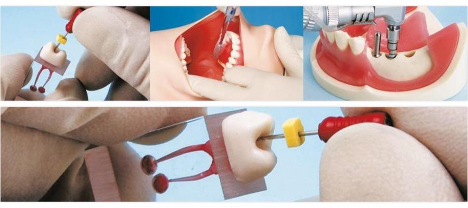 <strong>Nissin</strong><br>Modelos dentales